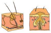 Illustration for acne — Stock Vector