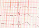 L ECG graph — Stock Photo