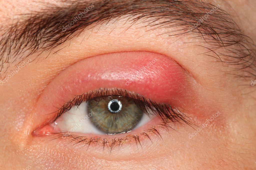 Болезни глаз лица с пла и гной, глядя в камеру.