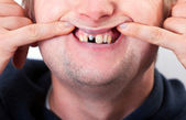 Young man face with broken tooth — Stock Photo