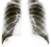 X-ray image — Stock Photo