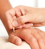 Yoneyama Shonishin Acupuncture Tool — Stock Photo