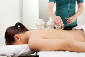 Cuppping Acupuncture Treatment on Female Back — Stock Photo