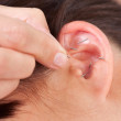 Ear Acupuncture Detail — Stock Photo