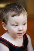 痘痘的男孩 — 图库照片