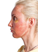 Cosmetology. Skin condition after chemical peeling TCA. — Stock Photo