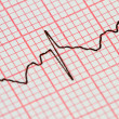 Electrocardiogram — Stock Photo #7855351