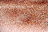 Texture de la peau sèche — Photo