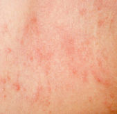 Allergic rash dermatitis skin texture — Stock Photo