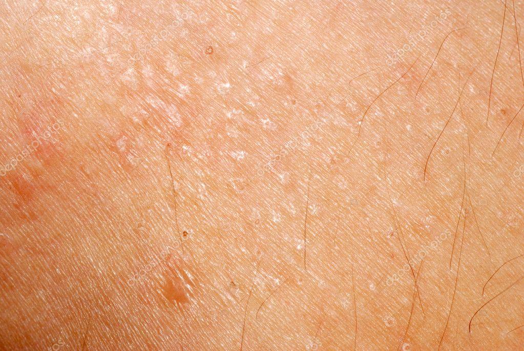 texture de peau allergique dermatite ruption cutan e photographie panxunbin 6947055. Black Bedroom Furniture Sets. Home Design Ideas