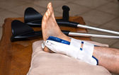 Broken ankle — Stock Photo