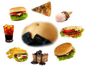 Obesity collection — Stock Photo