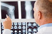 Mature doctor male point at set x-ray — Stock Photo