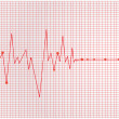 Royalty-Free Stock Vector Image: Heart cardiogram - vector