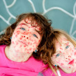 Child girls mischief pretending lipstick measles — Stock Photo