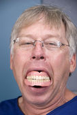Dentures — Stock Photo