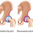Rheumatoid arthritis of hip joint — Stock Vector
