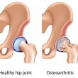 Royalty-Free Stock Vektorgrafik: Osteoarthritis of hip joint, eps8