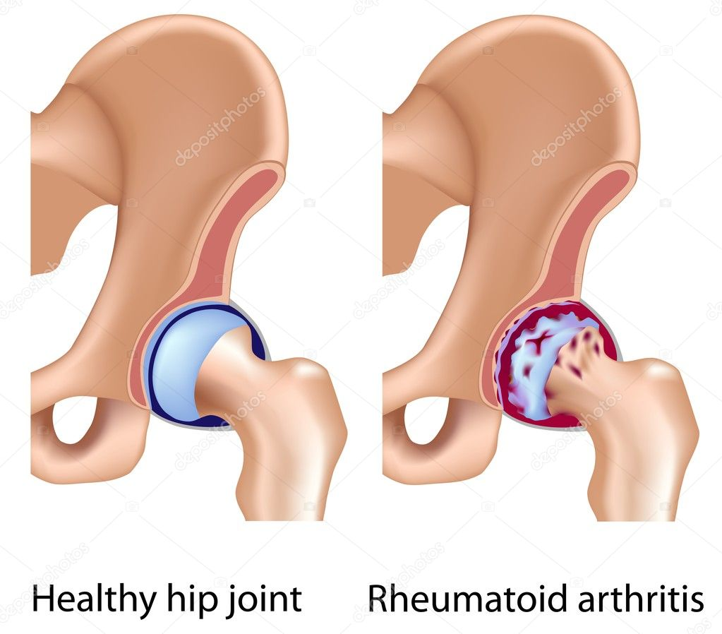 Rheumatoid arthritis of hip joint with infammation and bone/cartilage erosion, eps8 — Vektorgrafik #7454134