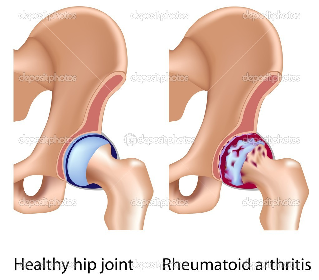 Rheumatoid arthritis of hip joint with infammation and bone/cartilage erosion, eps8 — Image vectorielle #7454134