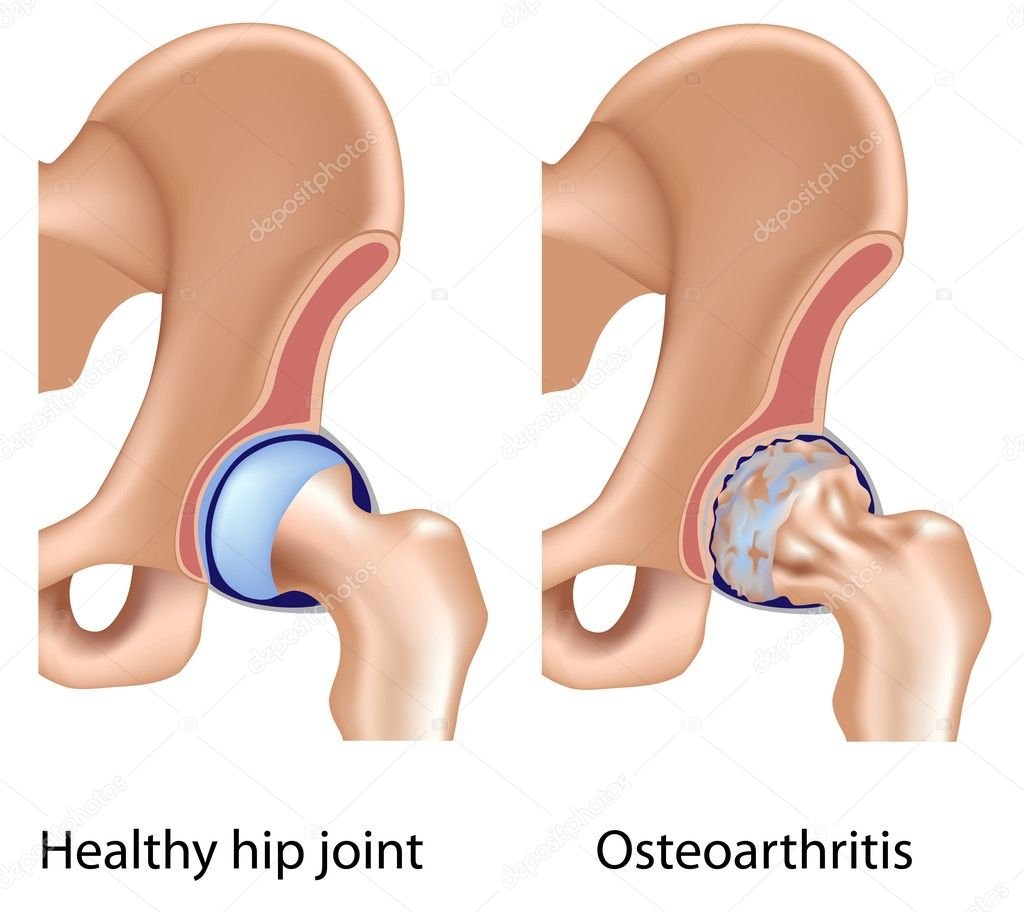 Osteoarthritis of hip joint, eps8, bone spurring and cartilage erosion — Stock Vector #7454142