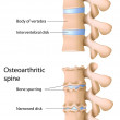 Osteoarthritis of the spine, eps8 — Image vectorielle