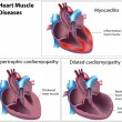Diseases of heart muscle, eps8 — Imagen vectorial