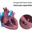 Congenital heart disease: ventricular septal defect — Stock vektor