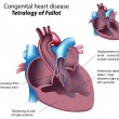 Congenital heart disease: Tetralogy of Fallot - Stock Vector