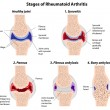 Stages of rheumatoid arthritis — 图库矢量图片