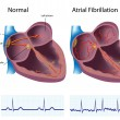 Royalty-Free Stock Vector Image: Atrial fibrillation, eps8
