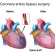 Heart bypass surgery, eps8 - Stock Vector