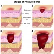 Stages of pressure sores, eps8 - Stock Vector