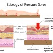 Etiology of pressure sores, eps8 — Stock Vector