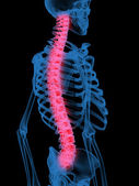X-Ray of Human Spine — Stock Photo