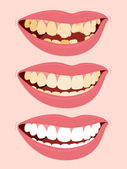 Progressive Stages Of Tooth Decay caries — Stock Vector