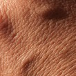 Skin close-up — Stock Photo