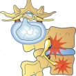 Vector de stock : Herniated disc