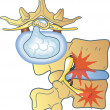 Herniated disc — Vector de stock #7642236