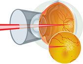 Laser eye surgery — Stock Vector