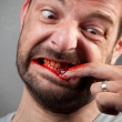 Crazy nailbiter. A man biting of his nails — Stockfoto