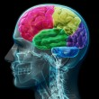 Colored sections of a male human brain — Stock Photo