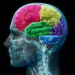 Colored sections of a male human brain - Stock Photo