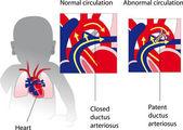 Patent ductus arteriosus. geneeskunde poster — Stockvector