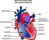 Heart cross section with patent ductus arteriosus — Vector de stock