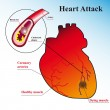Schematic explanation of the process of heart attack - Stok Vektör