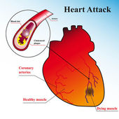 Schematic explanation of the process of heart attack — Stock Vector