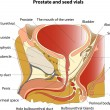 Постер, плакат: Prostate and seminal vesicles Educational poster