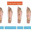 Types of bone fractures leg — Stock Vector