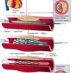 ballongvidgningbalónková angioplastika — Stockvektor